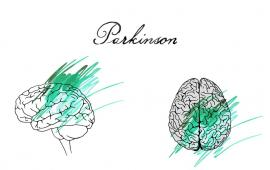 Nordic walking może poprawić stabilność dynamiczną chodu człowieka chorującego na Parkinsona