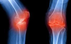 Wpływ chodzenia z kijkami na moment przywodzenia stawu kolanowego u osób ze zdiagnozowaną chorobą zwyrodnieniową kolan oraz ich przyśrodkowych wygięciem